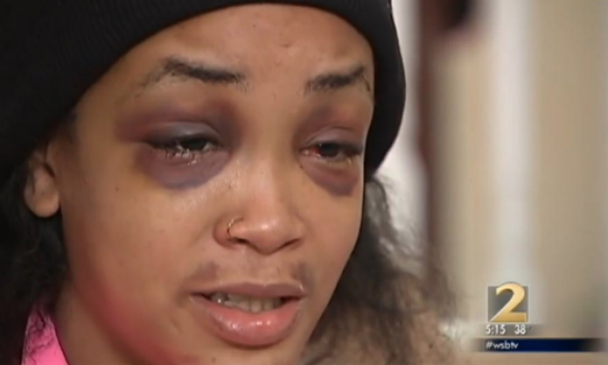 Atlanta Woman Brutally Beaten Over Hamburger