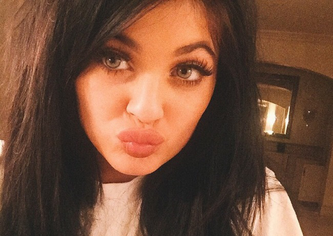 The Kylie Jenner 'Lip Challenge' is dangerous, stupid